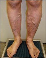 両側の下肢静脈瘤