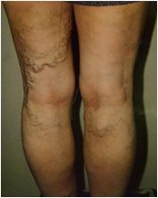 大腿の裏面に生じた静脈瘤