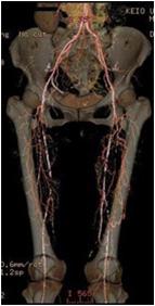 両下肢の閉塞性動脈硬化症の術前CT写真