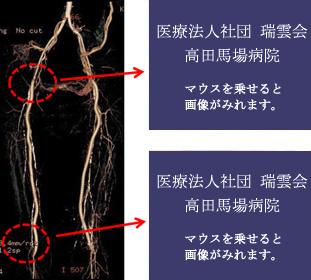 両下肢のバイパス術後